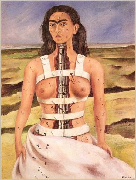 프리다 칼로, <부서진 기둥>, 1944   탁한 하늘과 메마른 사막에서 홀로 서서 정면을 바라보고 있는 그녀는 몸의 기둥이라고 볼 수 있는 척추대신에 그리스식 기둥이 부서져있고 온 몸에는 못이 박혀있다. 그런 그녀의 몸이 갈라지지 않게 하얀색 코르셋이 그녀를 감싸고 있다.    이는 부서진 척추의 고통을 온 몸에 박힌 못으로 나타내면서 슬픈 표정으로 눈물을 흘리며 보여주고 있다. 메마른 사막은 여러 번의 수술과 그로 인한 후유증으로 인해 고통 받은 그녀를 나타낸다.
