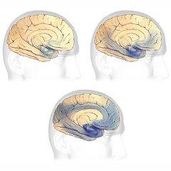 Les 7 stades de la maladie d'Alzheimer (Échelle de détérioration globale de Reisberg) | PsychoMédia