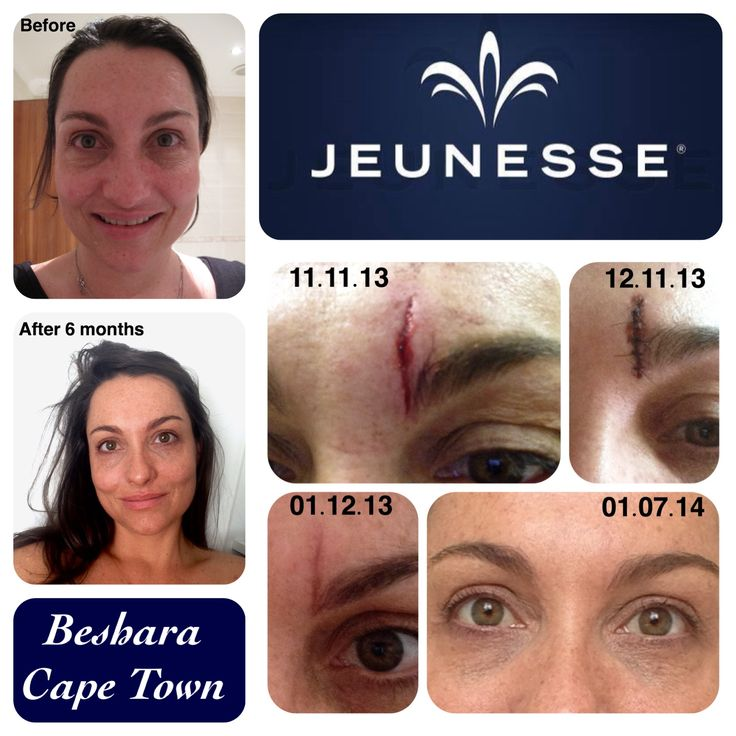 This is my before and after using the Luminesce range by Jeunesse.  I had a bad fall while fostering a baby.  I fell into an elevator and didn't break my fall as I rather saved the baby.  I had 8 stitches done at the local emergency room (no plastic surgery). After applying the serum I have no scar.  My skin has completely changed.