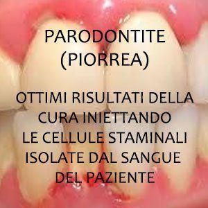 Piorrea (parodontite) - le cure in Croazia Curare la parodontite (piorrea) con nuovi metodi che prevedono l'utilizzo delle cellule staminali di piorrea parodontite dentisti croazia