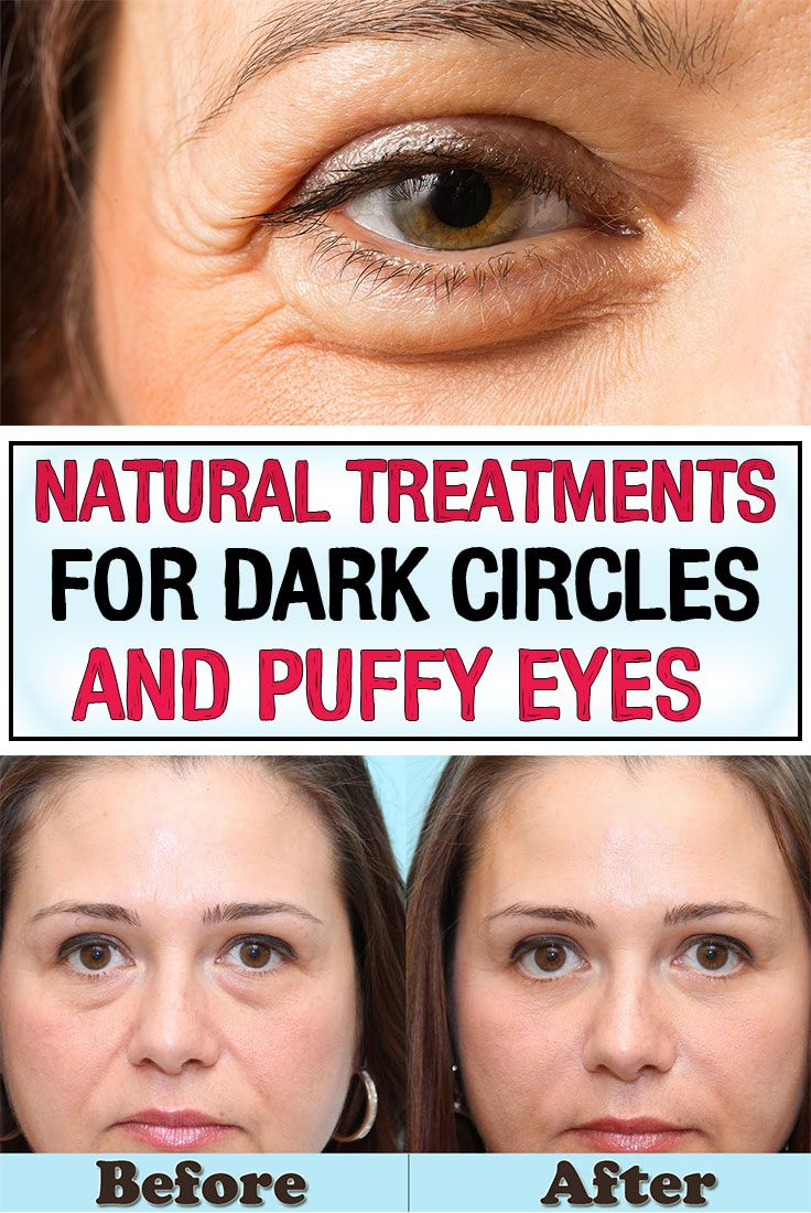 Getting tired of problems like dark circles and bags under the eyes? Here are some natural remedies that will get you rid of them without any side effects.