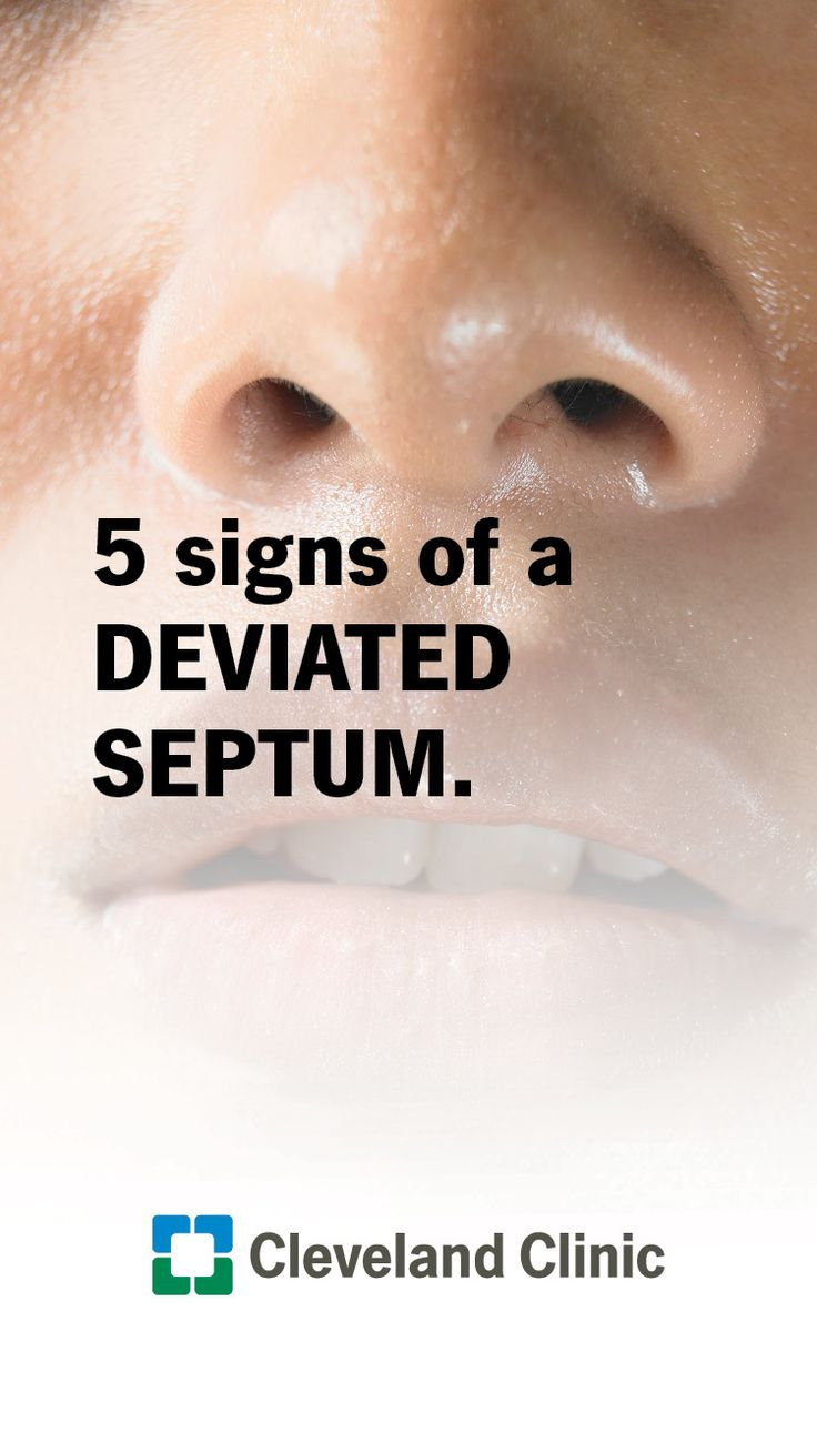5 signs of a deviated septum nasal passages septum