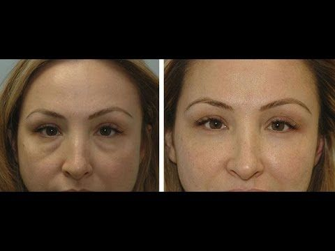 Face Rejuvenation: Removing Eye Bags And Dark Circles Without Aesthetic Surgery - YouTube