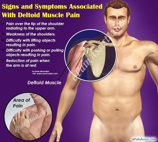 Deltoid Muscle Pain: Causes, Symptoms, Treatment, Recovery #DeltoidMusclePain…