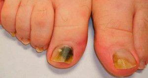 Sin importar tu raza o condición social, en algún momento de tu vida podrás puedes presentar problemas con tus uñas, y esto es ocasiona...