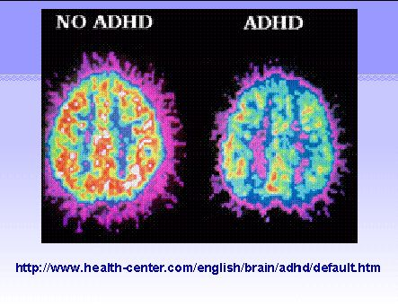 This is a handy picture when reading about ADHD.This picture shows differences in brainwave activitybetween patients with and without the affliction.Similar pictures can be found showing differences in neurotransmitters.These differences in no way represent variations in memory,intelligence,compassion,imagination etc.Improvements in medicine will further help patients with this condition:several good options exist now.