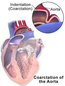 Coarctation of the aorta - Wikipedia