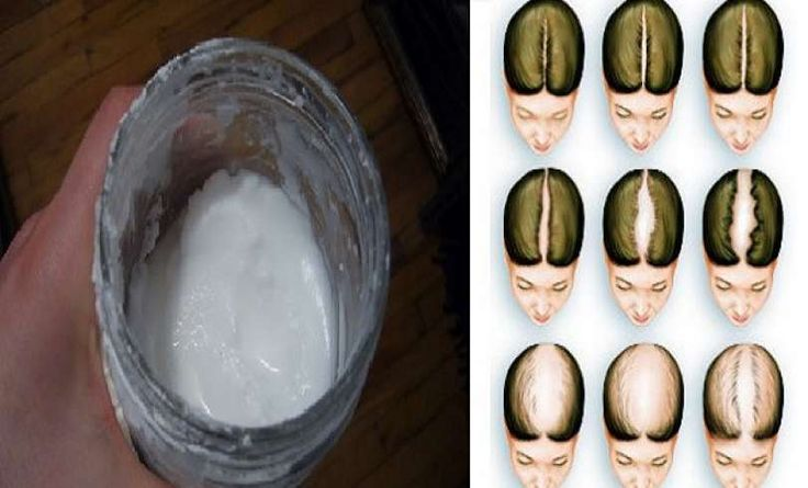 Como conocer sobre la alopecia