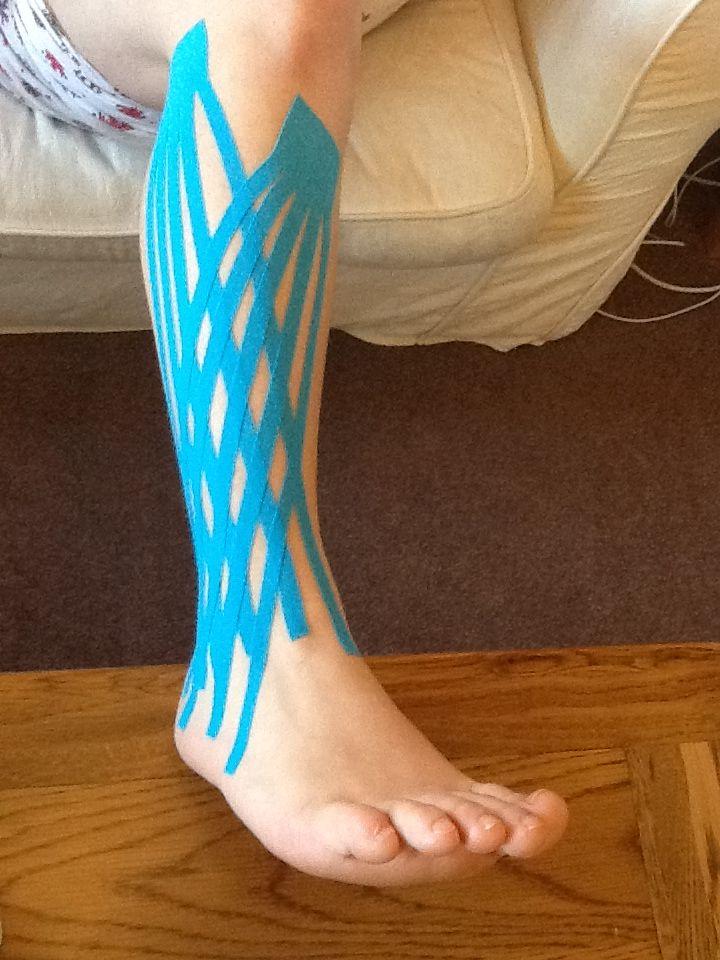 Kinesio tape application for knee edema