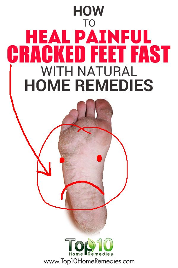 A Remedy Our Grandmothers Used To Heal #Cracked #Feet Fast
