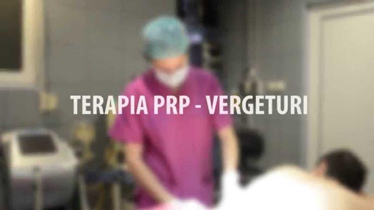 Tratament PRP- terapia Dracula - vergeturi