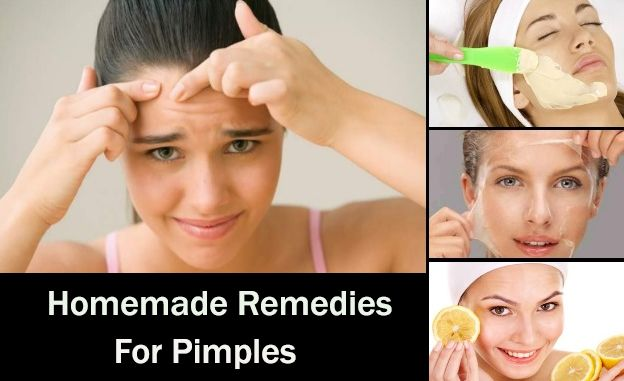 How To Reduce Pimples On Oil Face Naturally – E Blog Line