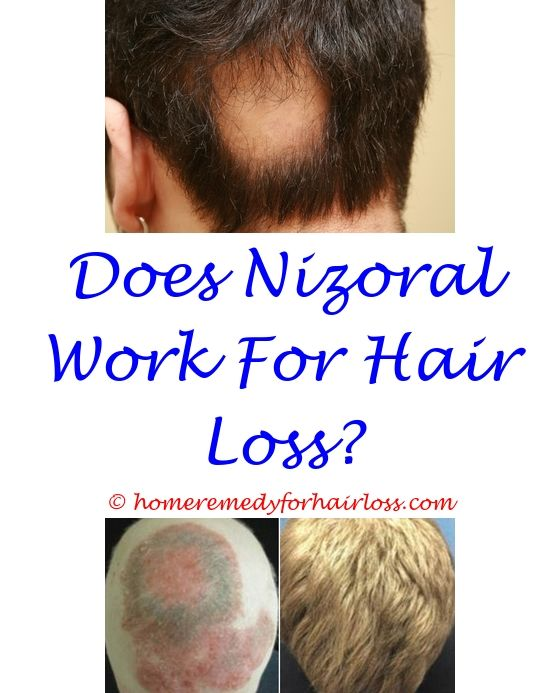 hair loss frums - hair loss from extreme dieting.disease that causes all hair loss accutane hair loss reddit dr proctor's hair loss reviews 1469964719
