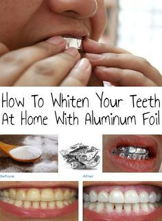 How To Whiten Your Teeth At Home With Aluminum Foil