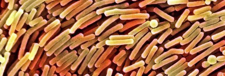 C. Diff, a deadly infection, is on the rise in U.S. hospitals. See what Consumer Reports recommends you do, plus check out our new hospital ratings.