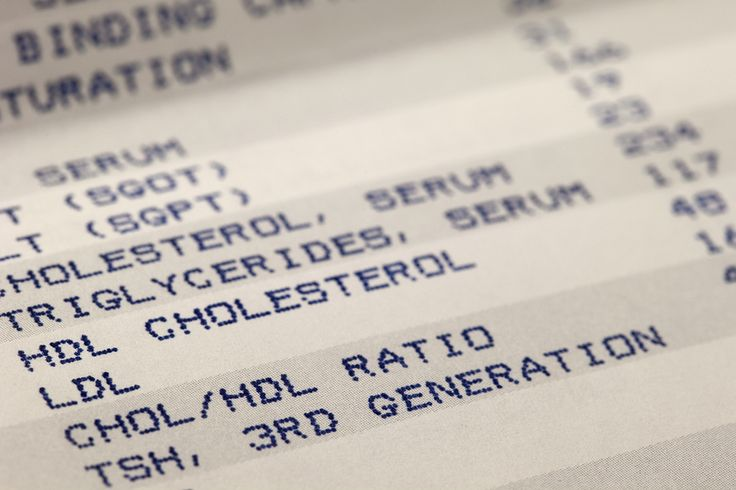 2016-10-18 - Do I still need to fast before a cholesterol test?