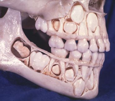 A child's skull with all deciduous teeth (baby teeth) still attached, and adult teeth showing in a quite developed stage underneath