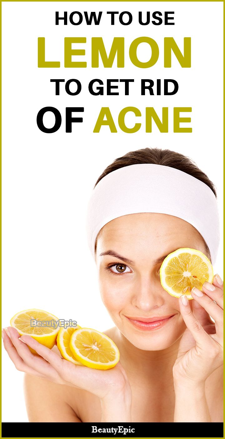 how do you get rid of acne with lemon juice?   natural skin care