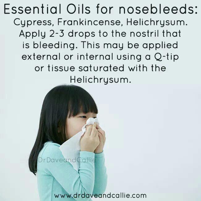 Nose bleeds essential oils