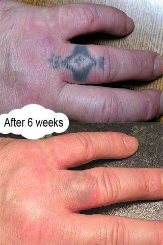 Tattoo after 6 weeks. Lemon   this ingredient can take it off. Learn more about laserless tattoo removal here: laserlesstattoore... #tattoo #tattoos #cover_up_tattoos #tattoo_cover_up #tattoo_removal #tattoos_for_women #temporary_tattoos #laser_tattoo_removal #tattoo_removal_cream #tattoo_removal_before_after #home_tattoo_removal #remove_tattoo_at_home #removal_cream #permanent_makeup #cosmetic_tattooing #permanent_makeup_remove #cosmetic_tattooing_remove #tattoosforwomen
