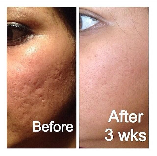 Awesome #Nerium results! Visit here : http://lookbetterlivebetter.net/ for more information about this product!!