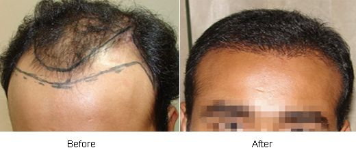 Hair #transplant and its #techniques