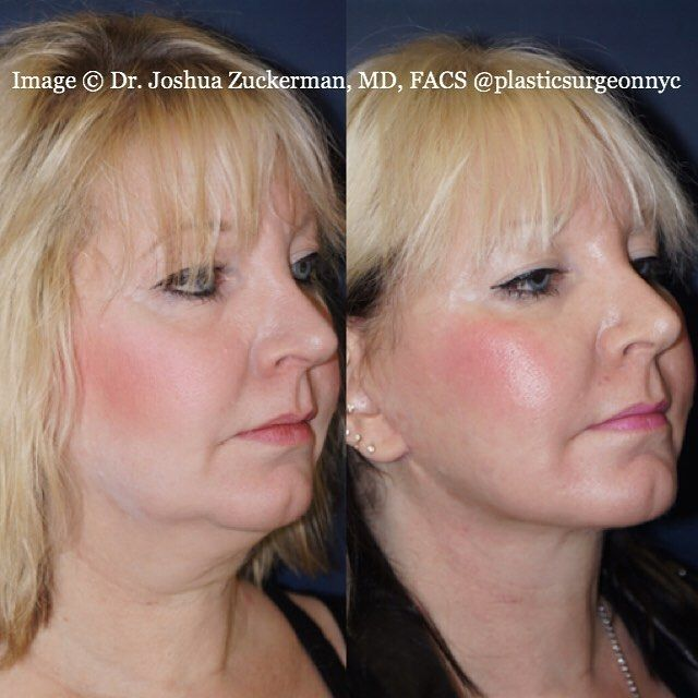 """#transformation This is the oblique view of the before and after for a patient of mine who underwent a facelift with liposuction of the neck.  You can see that the result is dramatic. We refined her jawline and sharpened the angle between the jaw and the neck. I also removed the vast majority of her submental (under the chin) fat via liposuction. I excised, and completely removed, the pad of fat that formed the jowls along her jawline. Jowls are created as the so-called """"marionette"""" lines..."""