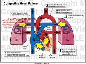 Image result for Congestive Heart Failure
