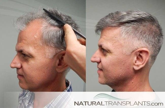 Hairrestoration Spotlightsunday Weekendvibes Sundayfunday Hair Transplant Women Losing Hair Women Hair Restoration