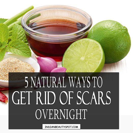 Overnight Acne Scar : ♥ IndianBeautySpot.Com ♥