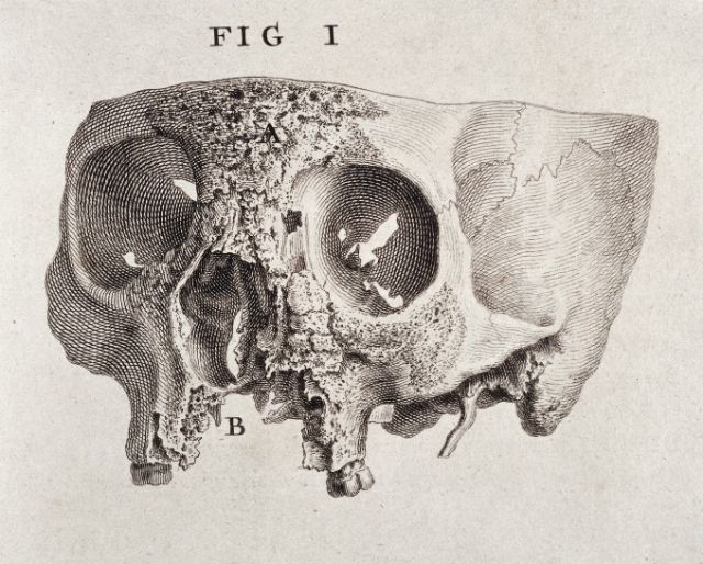 """William Cheselden, engraving showing the diseased part of a human skull. From """"Osteographia, or the anatomy of the bones"""" (1733)"""