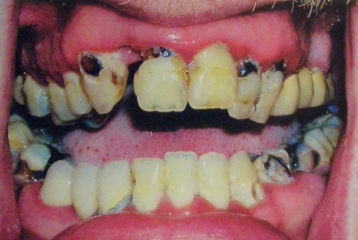 Meth mouth photo via Flickr userD.C.Atty