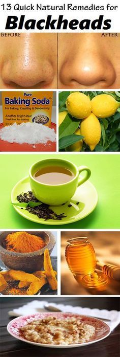 13 DIY Home Remedies for Blackheads :: Blackheads (Open Comedo) occur when your hair follicles become clogged with oil and dead skin cells in the skin opening pores.