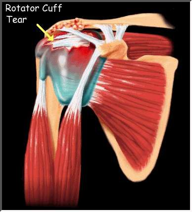 71 Best Images About Shoulder Surgery Amp Recovery On