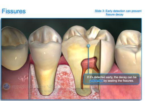 http://wfdental.com.au/images/dental%20caries%204.jpg