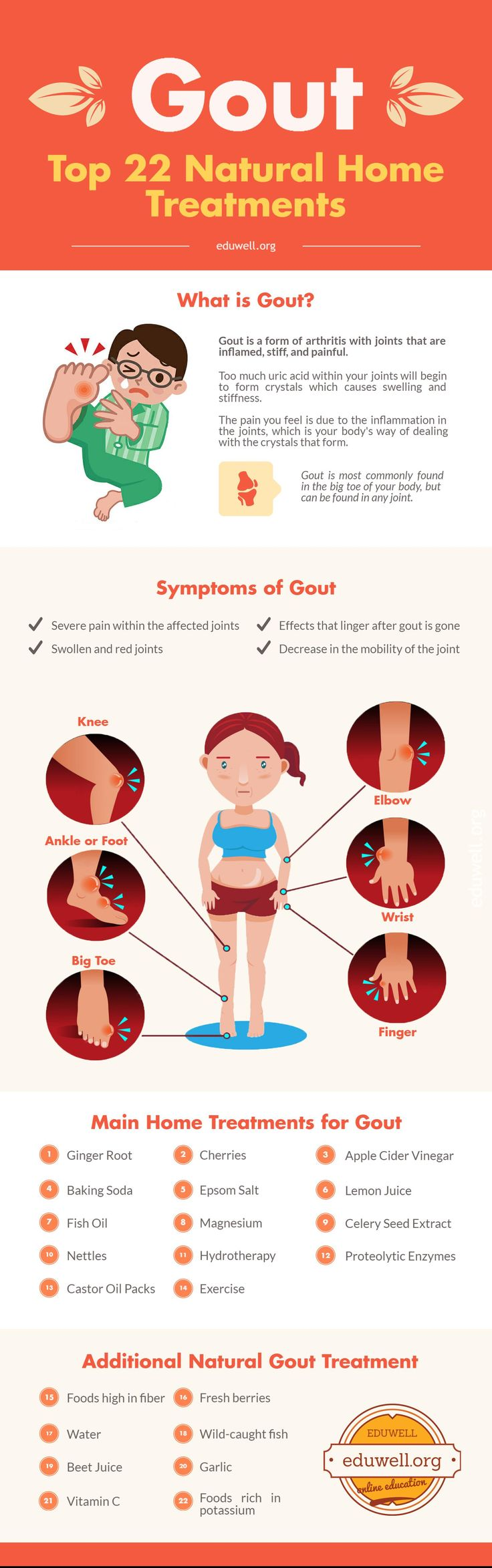 Top 22 Natural Home Treatments for Gout (Chart) - https://eduwell.org/treatments-for-gout Health. Learn important facts about gout, including its symptoms, natural treatment options. DIY Remedies for Gout Pain.