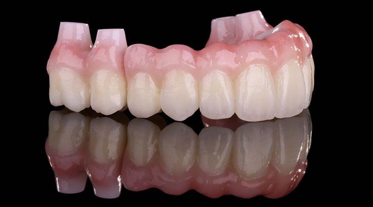 Upper and lower Prettau® Bridge on implants - by Manfred Pörnbacher