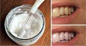 Perfectamente dientes blancos son la clave para una sonrisa hermosa. Sin embargo, los dientes manchados son una cuestión estética común ...