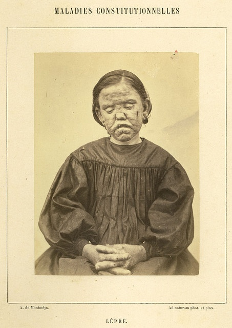 Young girl with Leprosy, by Dr. A. de Montmeja, a Parisian ophthalmologist and pioneering medical photographer. France, ca. 1868.
