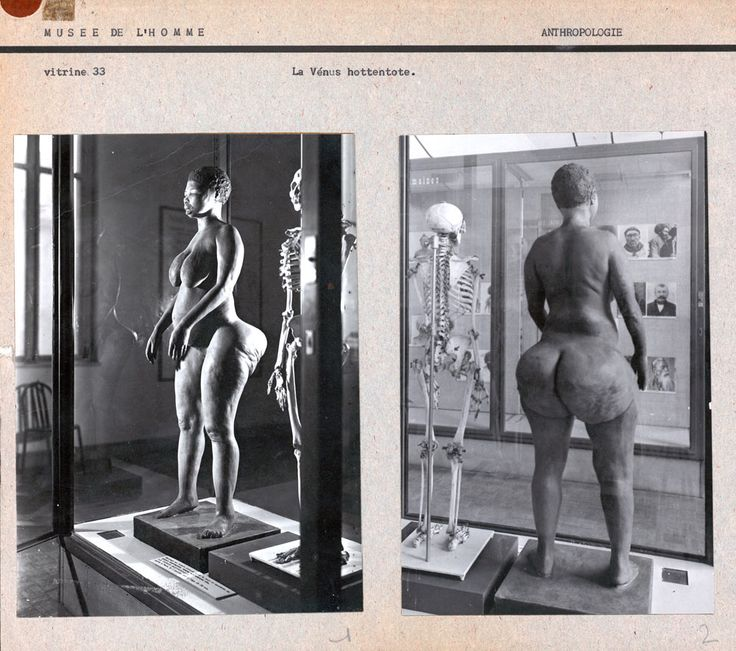 """Saartje Baartman's earthly remains and a plaster cast of her body were put on display at the """"Museum of Man"""" in Paris."""