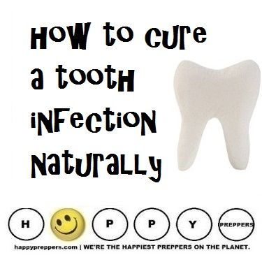 How to cure a tooth infection naturally: http://happypreppers.com/tooth.html
