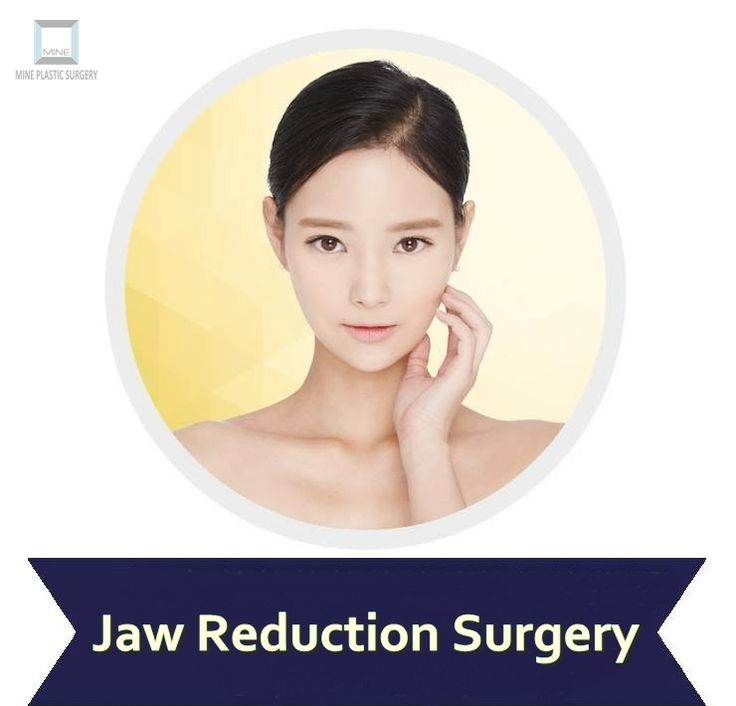 #Jaw_Reduction_Surgery  http://www.mineclinic.com/facial-contouring/jaw-reduction-surgery/
