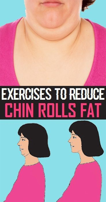 Simple Exercises to Reduce Chin Rolls Fat..