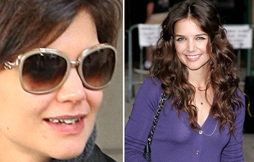 celebrity smiles  before and after