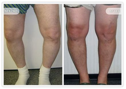 Before: A photograph of a gentleman with severe bowleg due to advanced osteoarthritis of the knee.  After: This is the correction obtained with a CustomFit knee. This man has a perfect result and is super happy.  Read more about genu varum deformity here: http://genuvarumnomore.com/genu-varum-deformity/