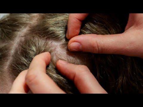 أقوى علاج القمل وبيضه الصيبان خلطة سحرية والله سريعة من أول إستعمال بدون رجعة Youtube In 2020 Natural Skin Tightening Lice Eggs Hair Lice