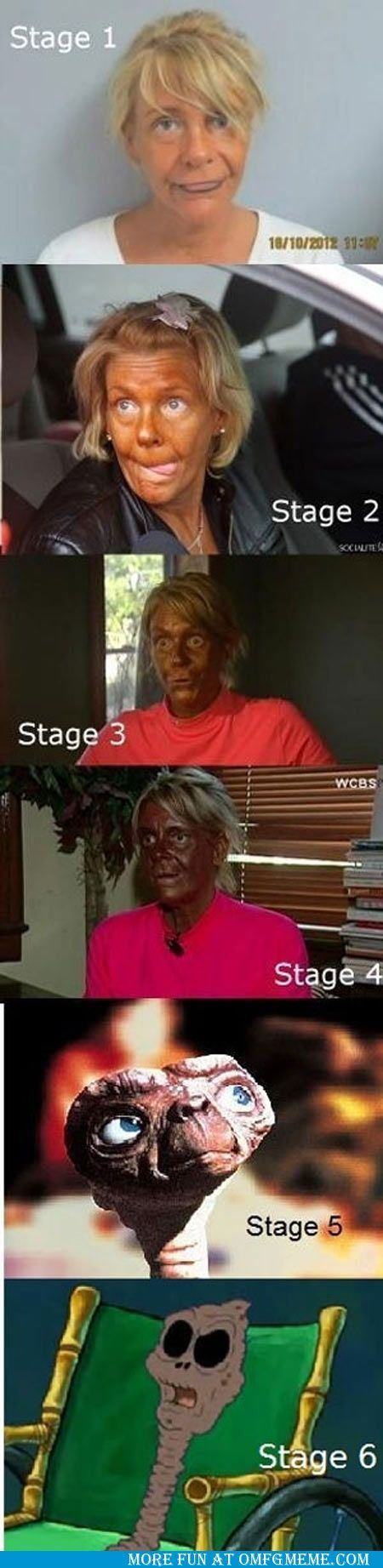 6 Stages Of Tanning funny pictures meme jokes My nieces and I were discussing this last week. Yikes. This is why you should not use tanning beds. Get some natural vitamin d.
