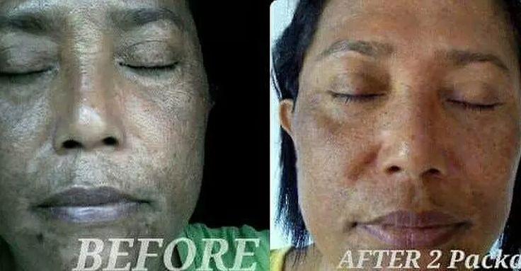 Perawatan Wajah Profesional Skin Regeneration   Flek Hitam   Anti Aging   D'Orlin Cosmetics Indonesia   Krim Flek Hitam   Krim Anti Aging   Perawatan Anti Aging