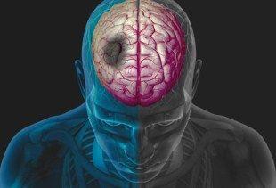 http://ayokesehatan.blogspot.com/2014/12/kenali-12-gejala-stroke-sejak-dini.html