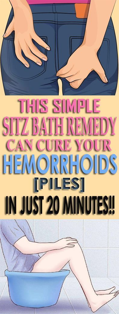 This Simple Sitz Bath Remedy Can Cure Your Hemorrhoids(Piles) in Just 20 Minutes!!